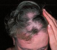 Las máscaras para los cabellos del kéfir como poner correctamente