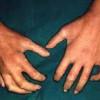 29 de junio – Día Mundial de la Esclerodermia